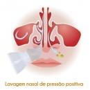 adaptador-para-lavagem-nasal-nozzle-soniclear_4_181128_3549.jpg